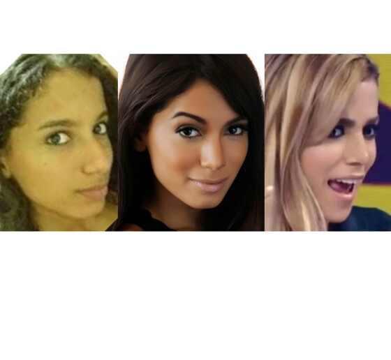 Anitta antes e depois das plásticas