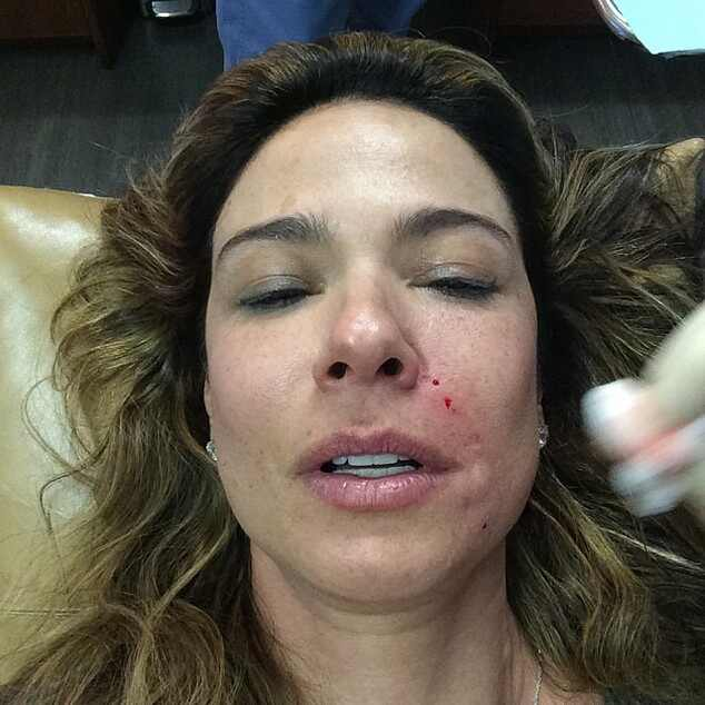 Luciana Gimenez reinjeta sangue para preencher rugas