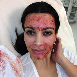 Vampire Facial, History of Skincare