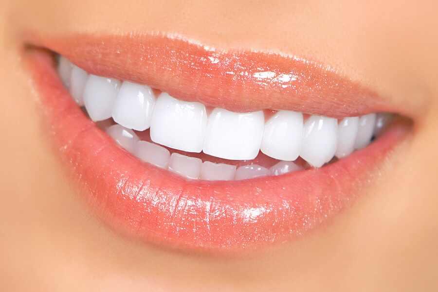¡7 efectivas maneras de blanquear los dientes en casa!