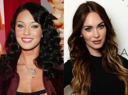 As celebridades que não admitem ter feito cirurgia plástica