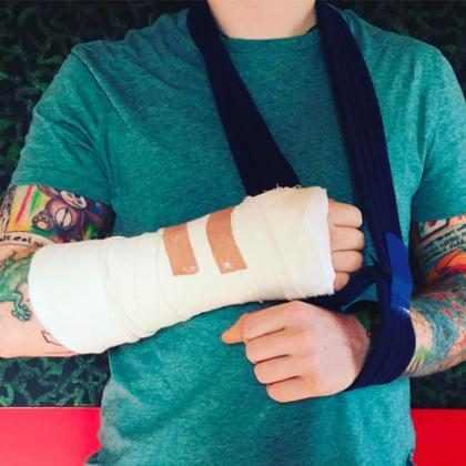 Ed Sheeran sofre acidente de bicicleta e machuca o braço