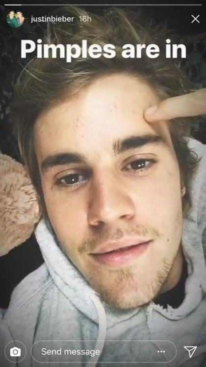 """Justin Bieber exibe marcas de acne no rosto e diz: """"Espinhas estão em alta"""""""