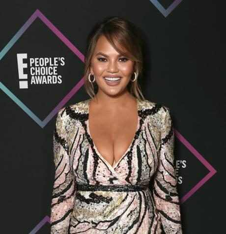Only Chrissy Teigen Would Wish Her Boob Job a Happy 10-Year Anniversary