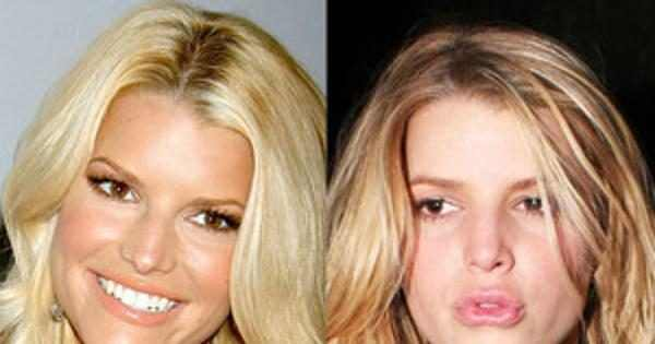 Jessica Simpson Tori Spelling And More Regret Getting